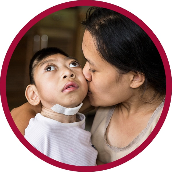A mother kisses and her child with special needs